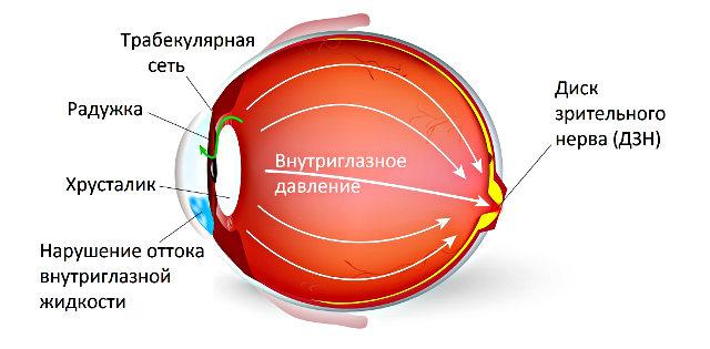 Офтальмогипертензия глаз