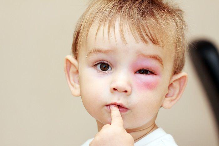 Мальчик с опухшим глазом