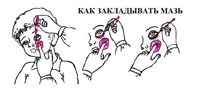 Правила закладывания глазной мази