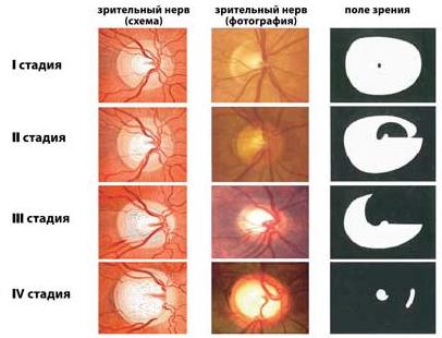 Стадии атрофии зрительного нервы и поле зрения