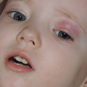 У ребенка воспалено веко