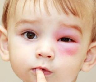Один красный глаз у ребенка